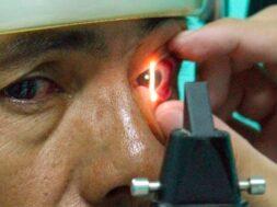 glaucoma (1)
