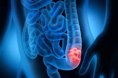 Estos son los principales factores de riesgo de c√°ncer de colon: signos sobre los que sospechar